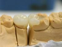vkladka-na-zub-krasnodar
